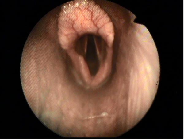 Endoscopic Picture of Horse Larynx